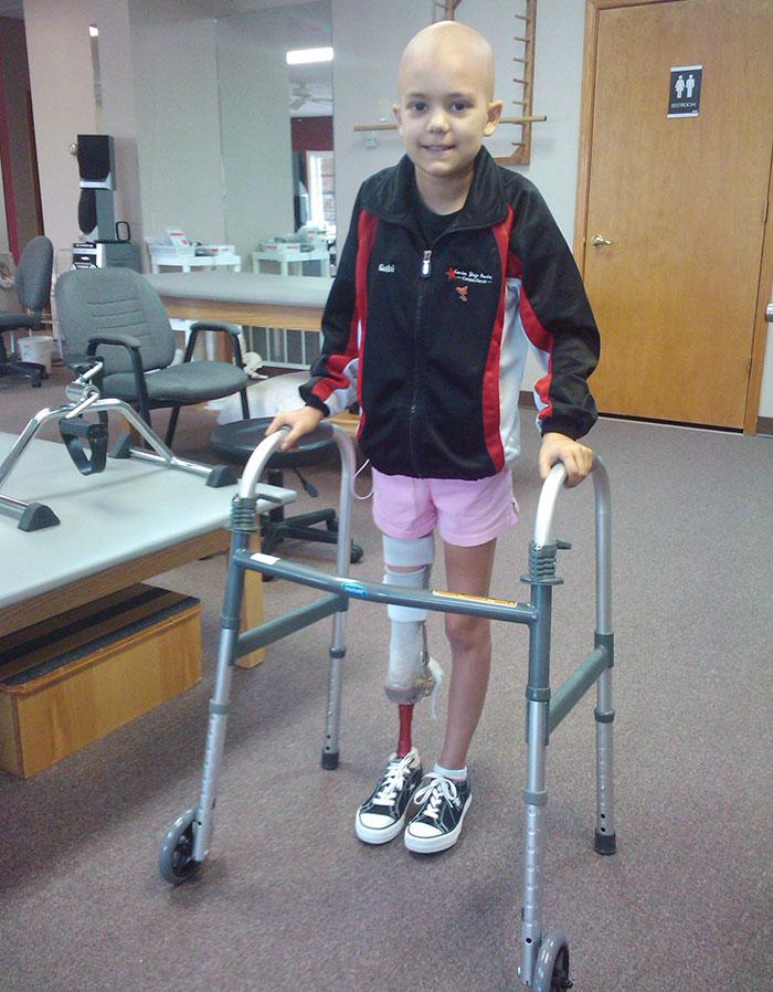 Это Габби Шулл, когда ей было 9 лет часть ее ноги ампутировали из-за рака