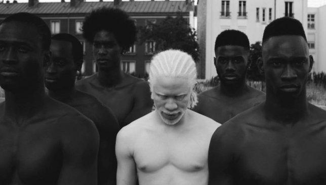 Социальный проект: как живется людям-альбиносам на самом деле (Фото)