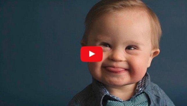 Малыш с синдромом Дауна стал звездой соцсетей и модельного бизнеса (Видео)